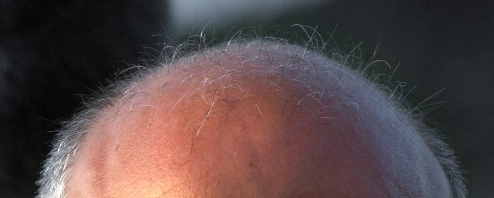każdy włos jest policzony,zdjęcie: melehmann@flickr.com, CC-BY